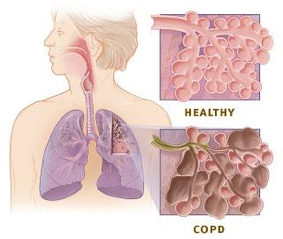 asthma spray wikipedia